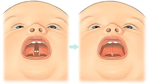 Cleft Palate Surgery