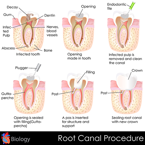 Root Canal Threpay