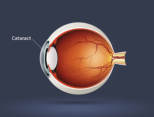 Cataract Treatments