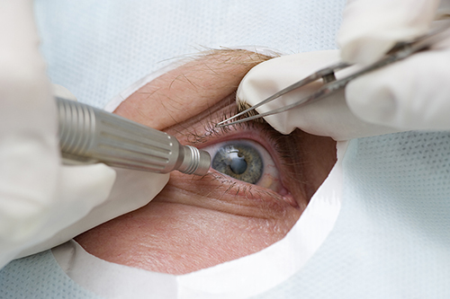 Cataract Surgeries