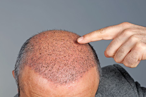 Post Op Hair Transplant