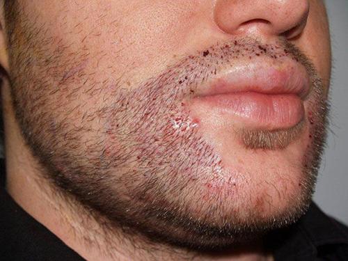 Moustache Transplant