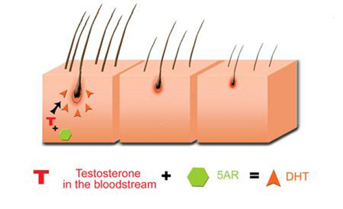 DHT Dihidrotestosteron Hair Loss