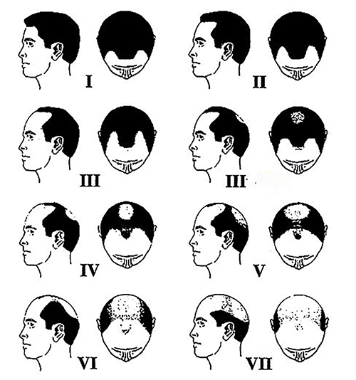 Classification of Male Pattern Hair Loss