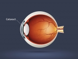 Cataract is a clouding of the lens inside the eye which leads to a decrease in vision.